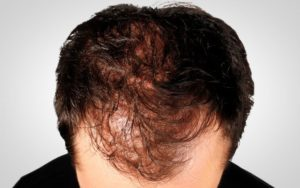 male pattern hair loss or thinning hair