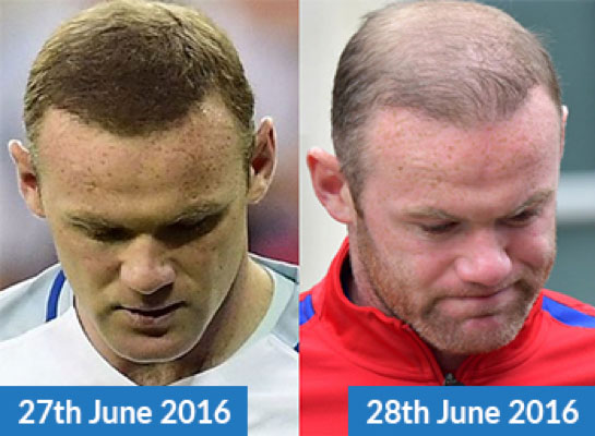 Is Wayne Rooney using Hair Loss Concealers?