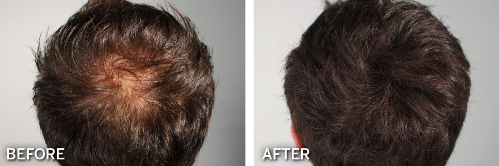 Biothik Hair thickening product results