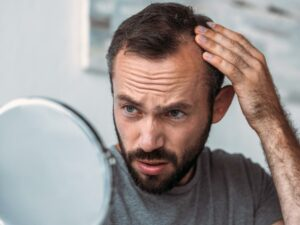 man experiencing thinning hair